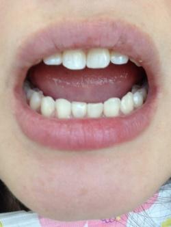 前歯にオールセラミック冠、歯の隙間はダイレクトボンディングで形態修正した症例03