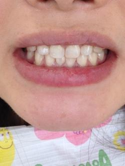 前歯にオールセラミック冠、歯の隙間はダイレクトボンディングで形態修正した症例04