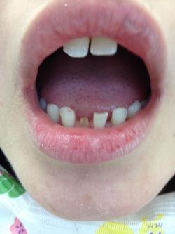 前歯にオールセラミック冠、歯の隙間はダイレクトボンディングで形態修正した症例01