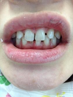 前歯にオールセラミック冠、歯の隙間はダイレクトボンディングで形態修正した症例02