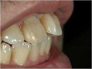 ホワイトニングをしてから前歯2本をオールセラミックスで治した症例