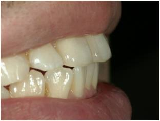 治療前の横からみた歯